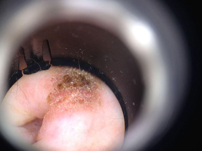 Dermatology Course