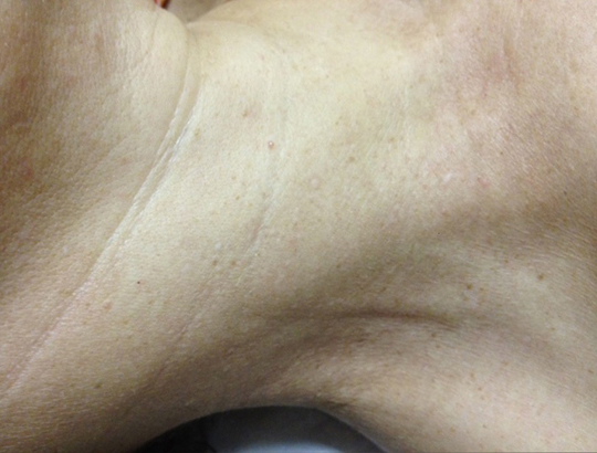 Skin Lesion Removals