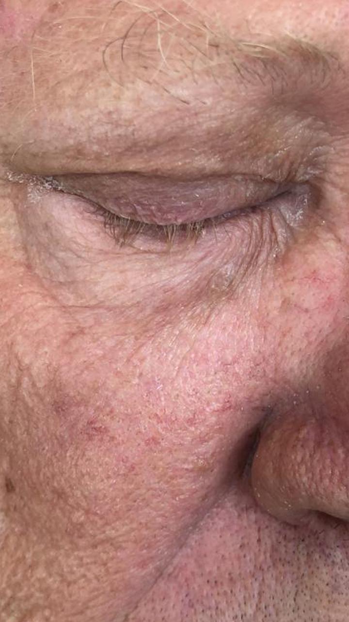 mole-eye